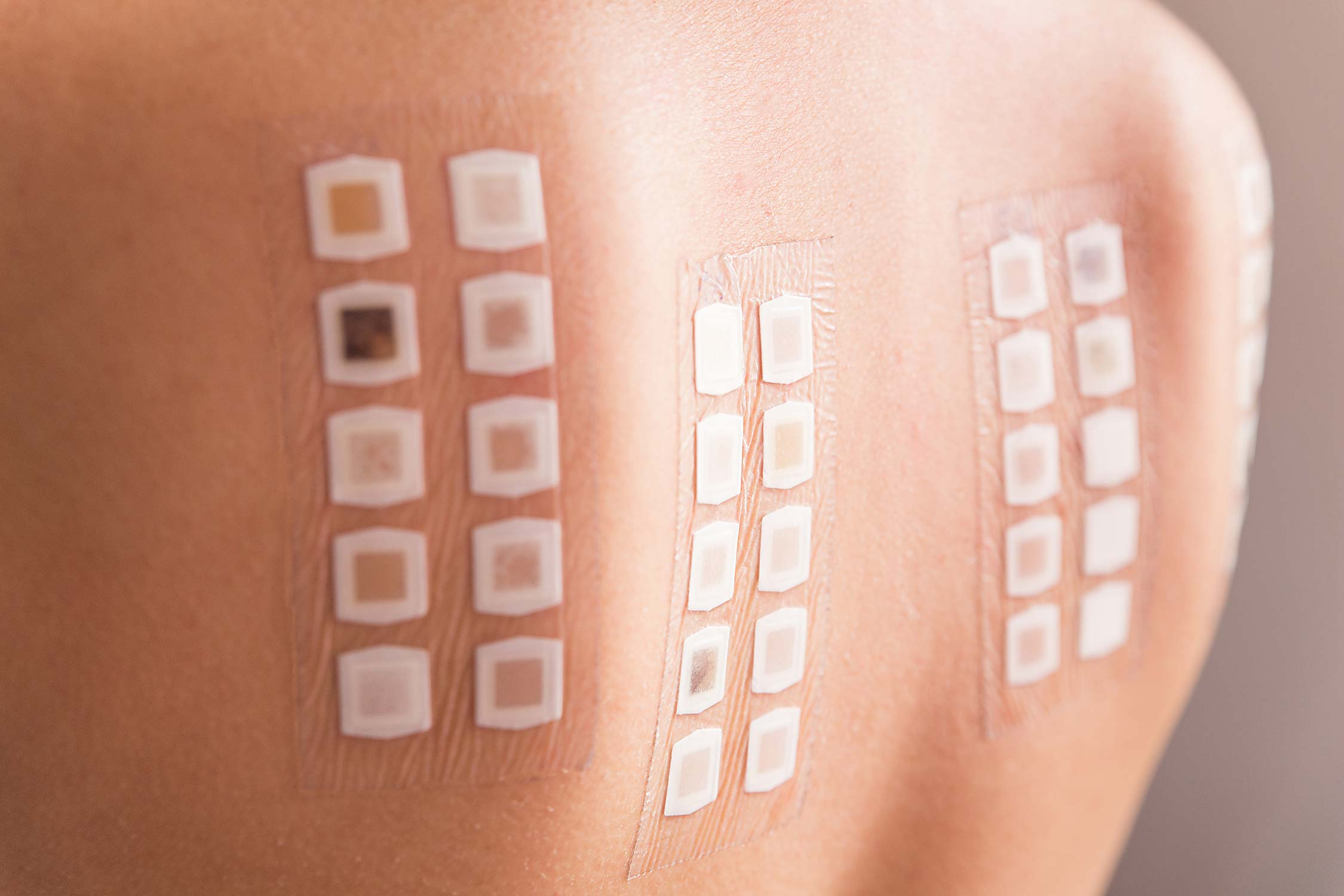 Contact dermatitis test patches on patient's upper back