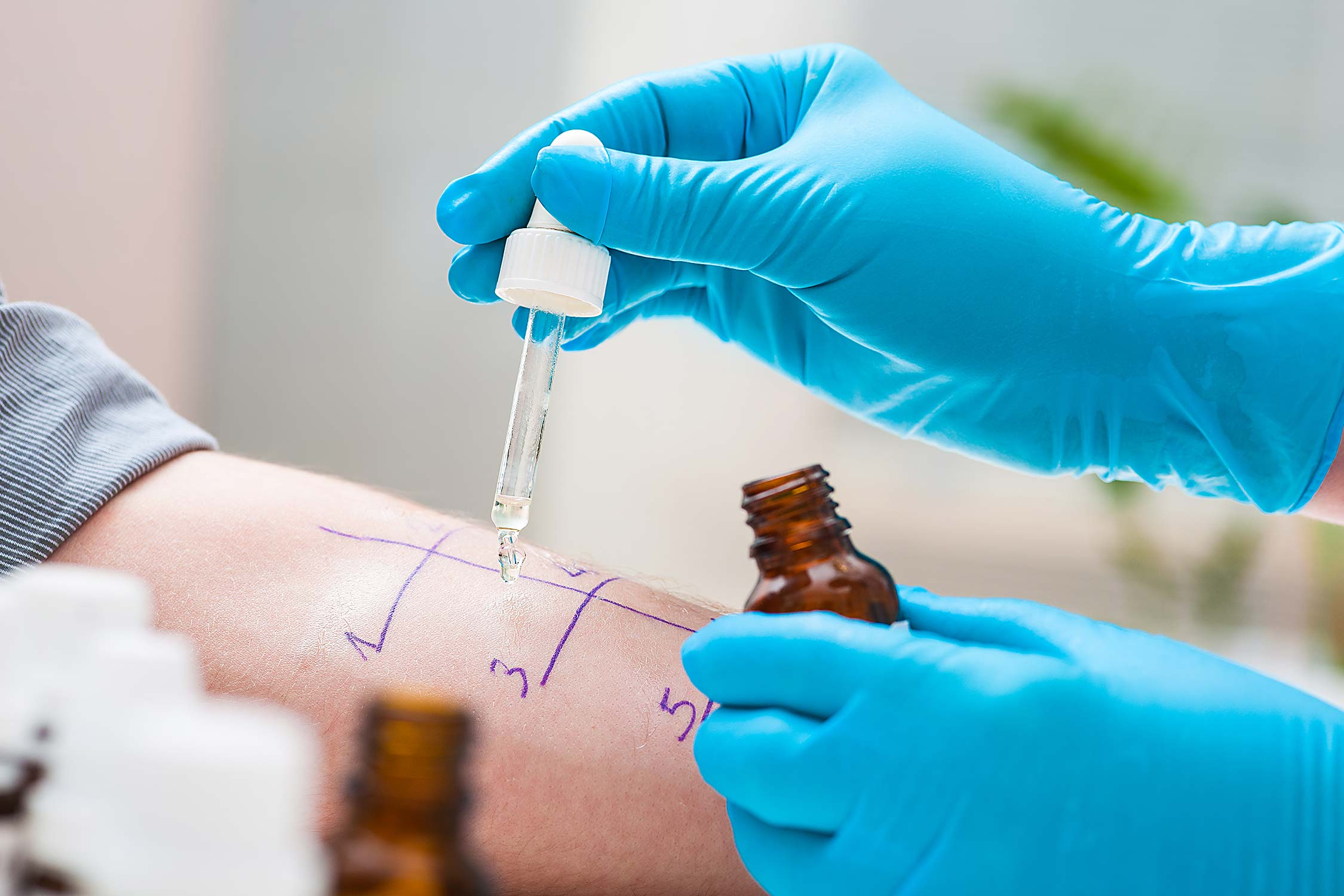 Applying contact allergen drops to forearm test area