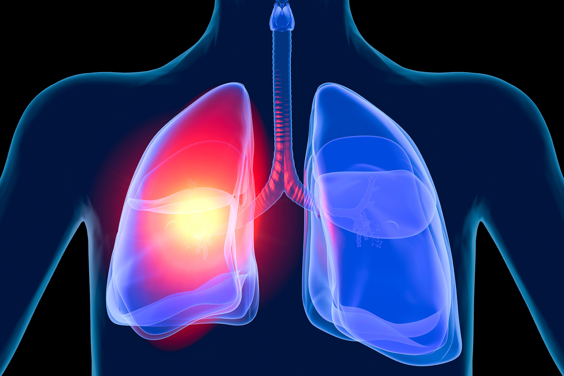 Image of lung testing
