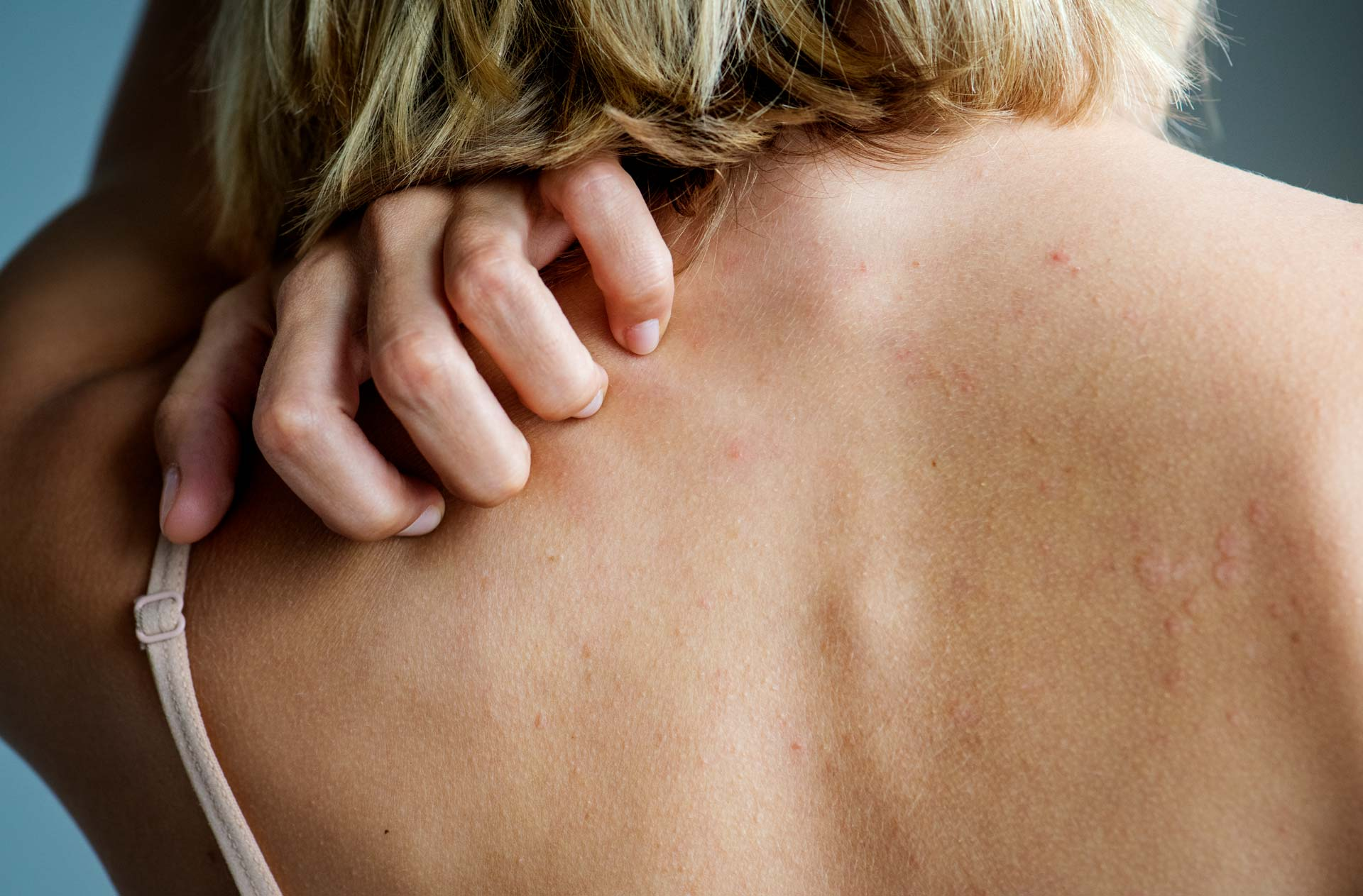 Image of woman scratching her back because of hives.
